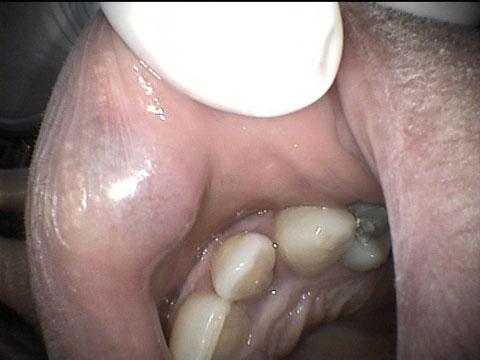 angioma2