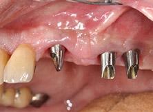 implantologia_13