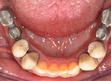 implantologia_24