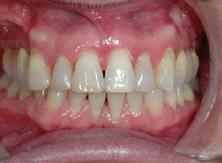 ortodonzia_01_dopo