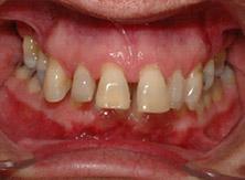 ortodonzia_01_prima