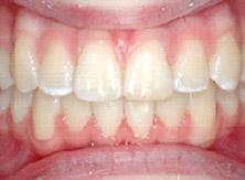 ortodonzia_02_dopo
