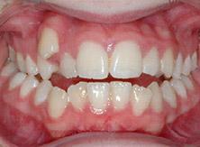 ortodonzia_03_prima