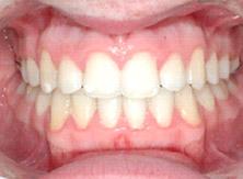 ortodonzia_04_dopo