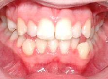 ortodonzia_04_prima