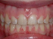 ortodonzia_05_dopo