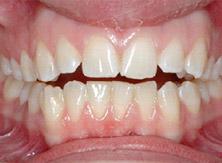 ortodonzia_05_prima