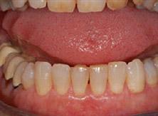 parodontologia_01_dopo