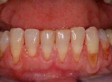 parodontologia_01_prima