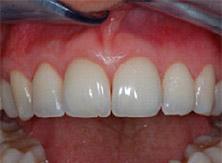 parodontologia_02_dopo