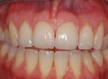 parodontologia_02_prima